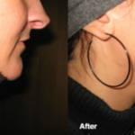 Smart-Lipo - Chin and Neck Sculpting