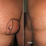 Smart-Lipo Male Breast Reduction
