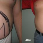 Smart-Lipo- Male Stomach Sculpting