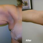 Smart-Lipo-Under-Arm-Sculpting