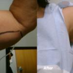 Smart-Lipo-Under Arm Sculpting